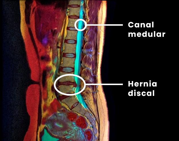 Hernia de disco sintomas graves