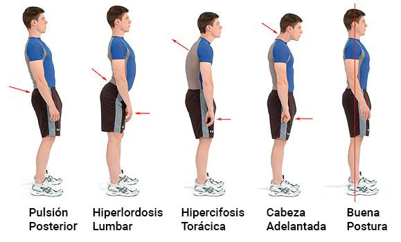 patrones posturales fisioterapia
